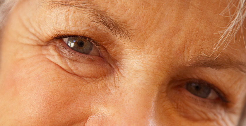 Visage en close-up sur les yeux - illustre l'article Les chiffres de la déficience visuelle